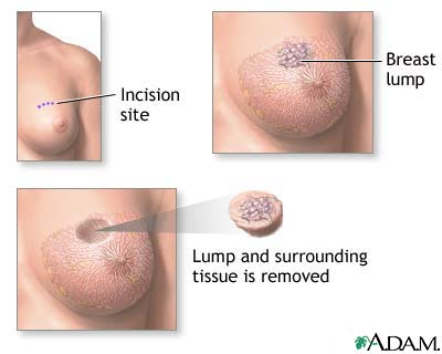 Breast Conservation Surgery (Lumpectomy)