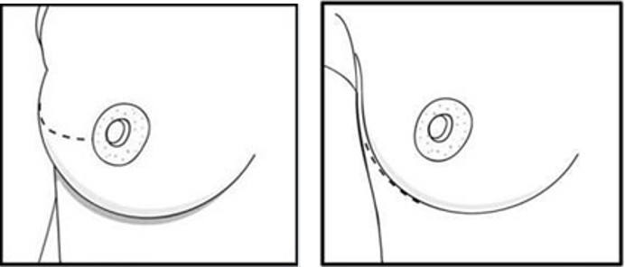 Nipple sparing mastectomy incision options. Left,radial incision; right, inframammary incision