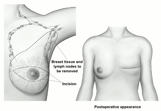 Skin Sparing Mastectomy Incision