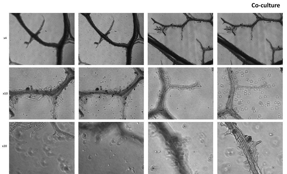 leafskeleton(plus)neurons-1.jpg