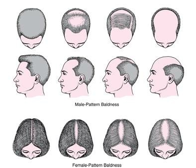 our painless, effective hair regrowth treatment is used for both male and female baldness patterns - moncton's hair loss treatment clinic