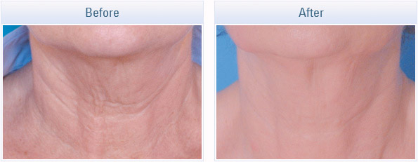 skin tightening treatment canada skincare franchise