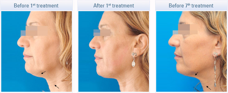 dermaenvy skincare skin tightening treatment