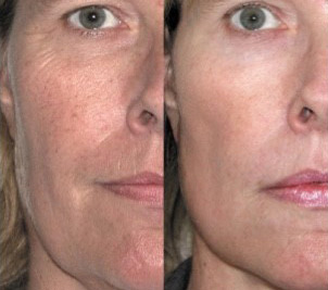 ipl photofacial dermaenvy