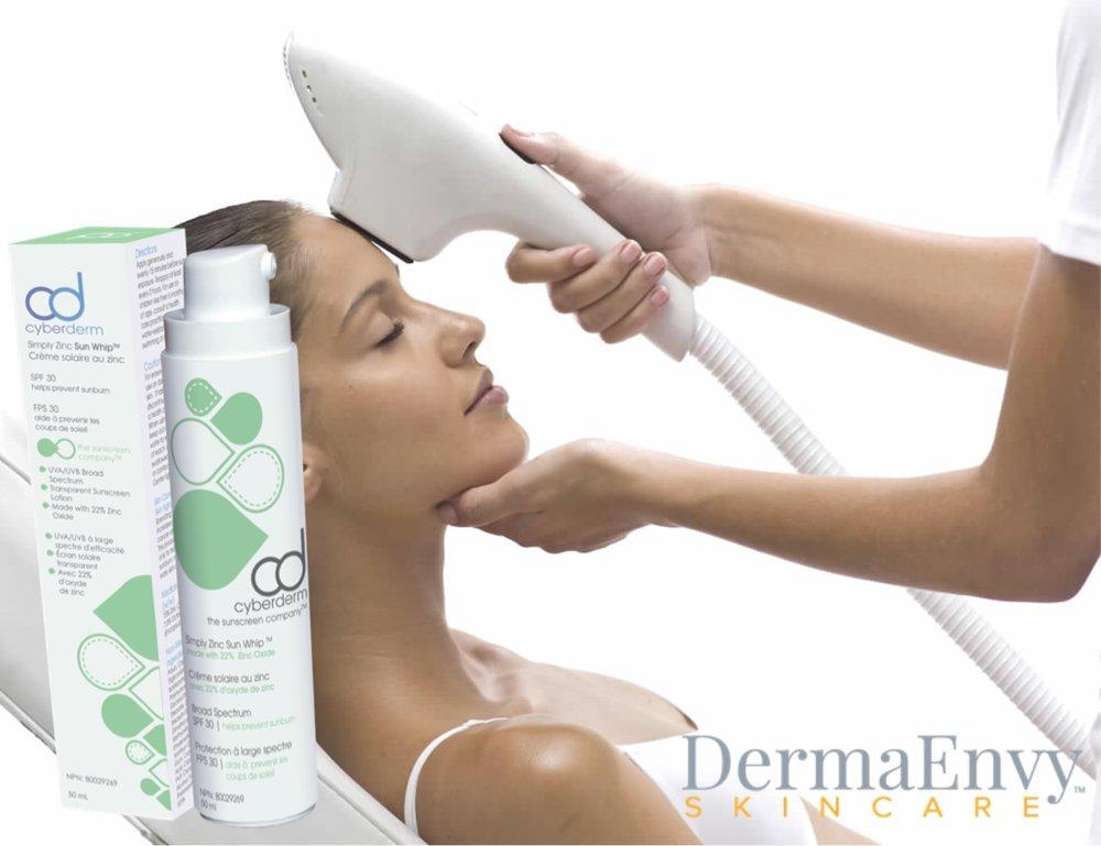 dermaenvy skincare photofacial