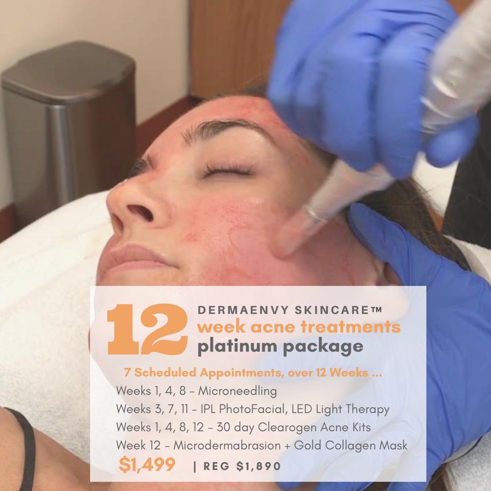 saint john rothesay nb acne treatment clinic