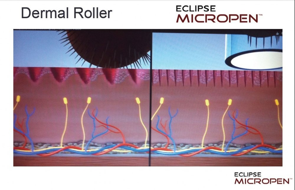 derma roller vs. eclipse micropen microneedling treatment
