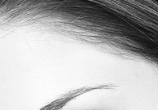 Brow-lifts