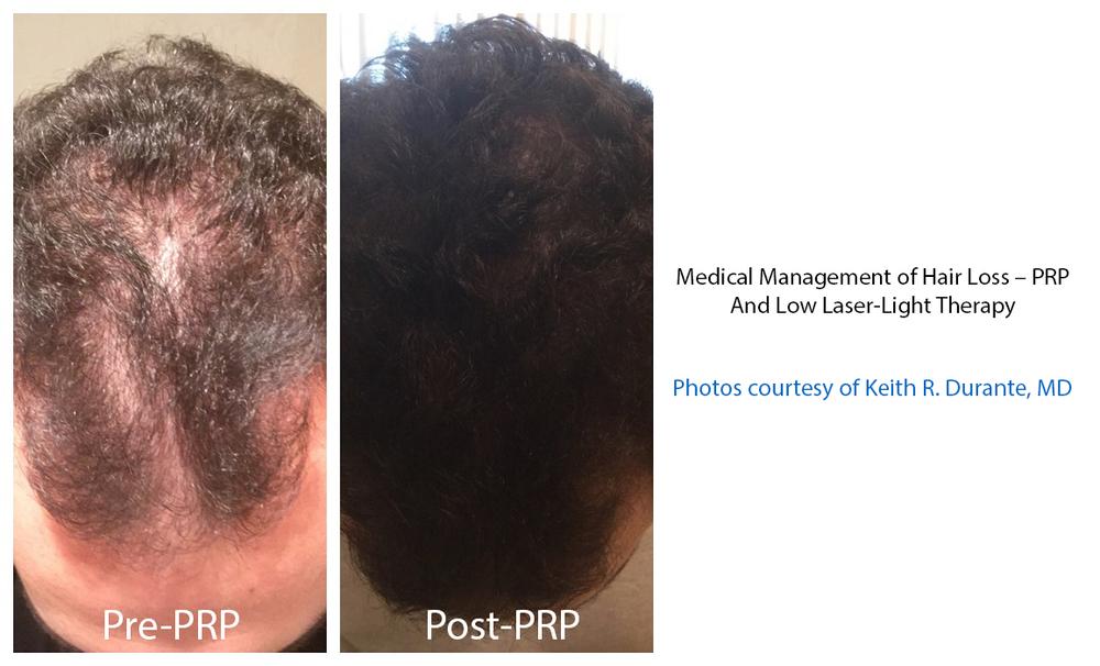 PRP hair.jpg