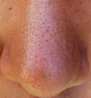 Sabaceous filament on the nose