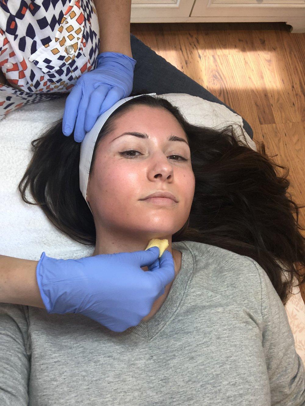 Tina applying the peel to my skin.