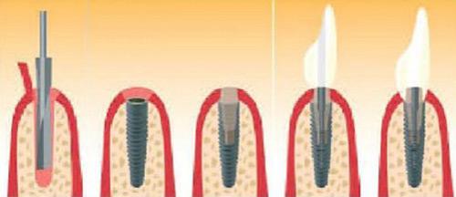 Schaubild Implantatbehandlung