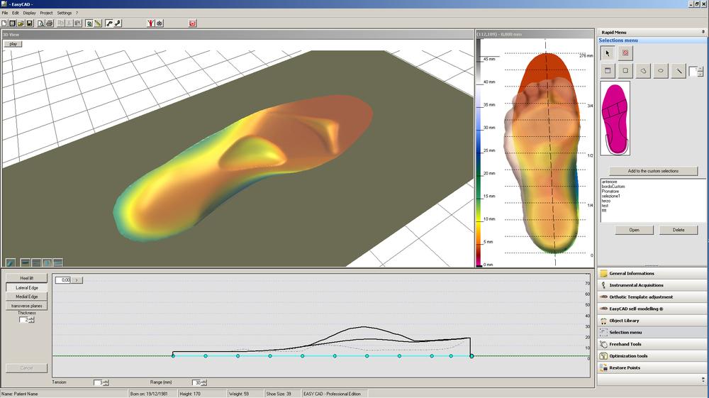 Diseño CAD CAM plantillas