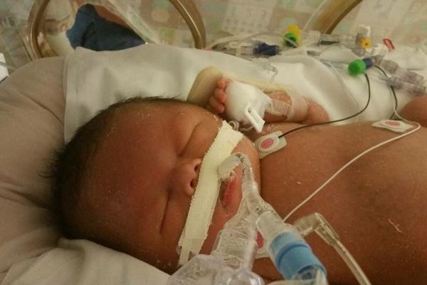 Help Baby Nolan! https://www.gofundme.com/helpforbabynolan