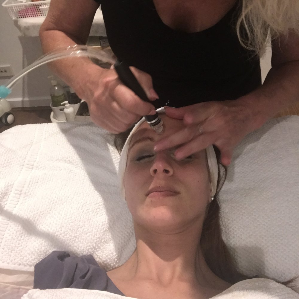 Canberra beauty blogger, hydrodermabrasion