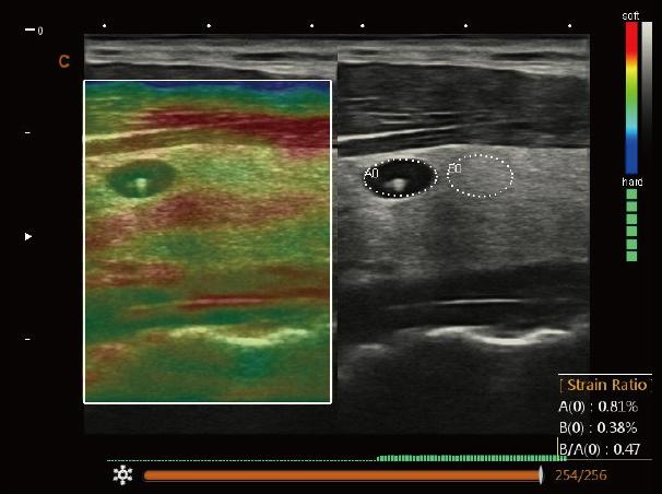 Thyroid, Elastography