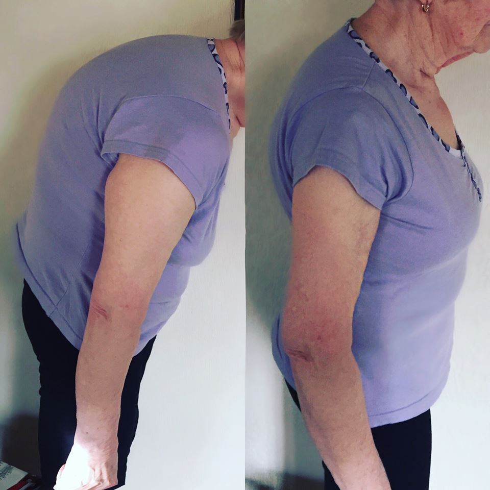 Here we can see that the client has visibly less spinal curvature and a much greater range of movement in the after photo. She had severe back pain eliminated by postural correction and muscular strengthening.