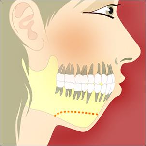 Antero-posterior chin deficiency.