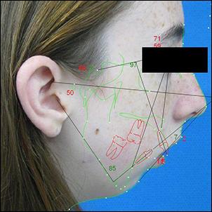 Convex facial profile due to severe mandibular hypoplasia.