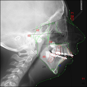 Measurement of facial bones and soft tissues.
