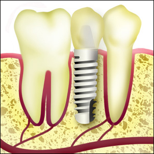 Implant replacing one tooth.