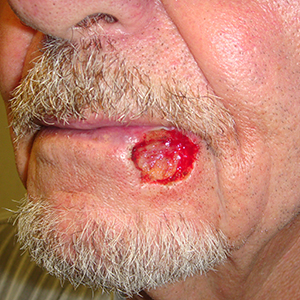 Lower lip defect after skin cancer removal.
