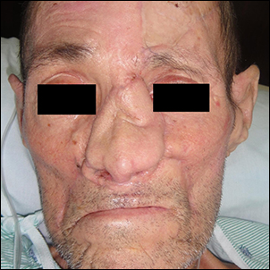 Nasal deformity after cancer removal and initial reconstruction.