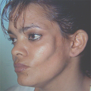 Soft tissue deficiency in the left side of the face.