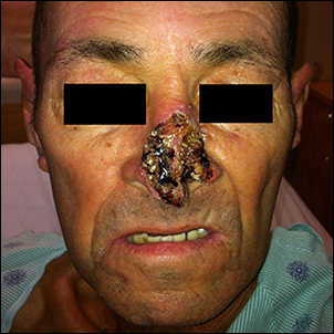 Advanced nasal cancer (Basal cell carcinoma).