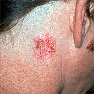 Lesion with a benign appearance that it's skin cancer.