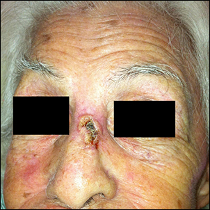 Skin cancer (Basal cell carcinoma).