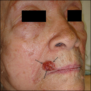 Upper lip cancer (Squamos cell carcinoma).