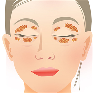 Excess of fat in both upper and lower eyelids.
