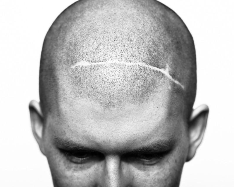 Looz Dorl Orazzib, surgery scars.