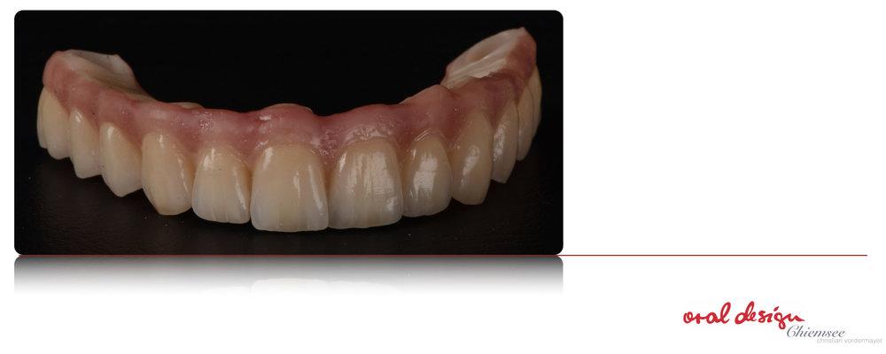 Implantatbru¦êcke2.jpg