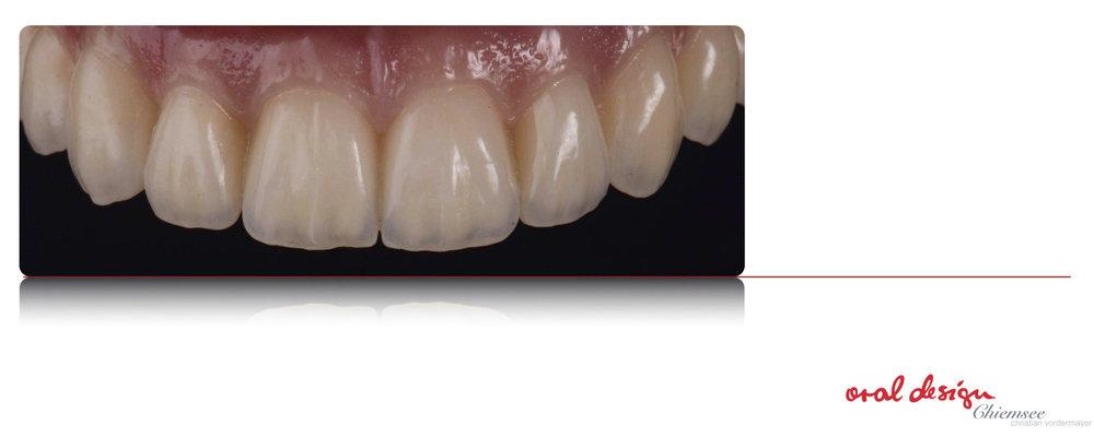 Implantatbru¦êcke6.jpg