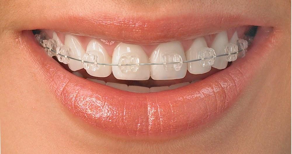 Clear-Orthodontic-Brackets1.jpg