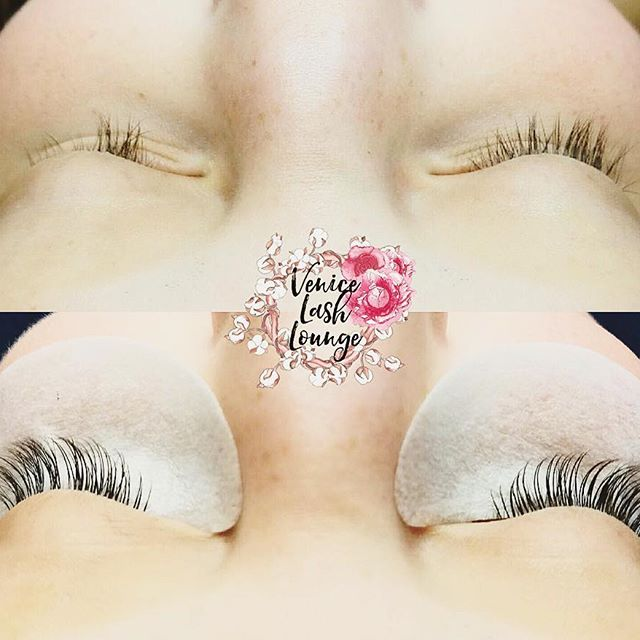alopecia lash.jpg