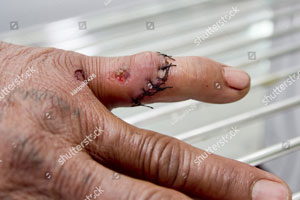 Lacerations-requiring-stitches-cuts.jpg