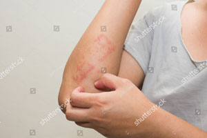 Allergic-reactions.jpg