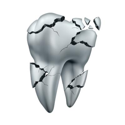 leduc dentist broken tooth