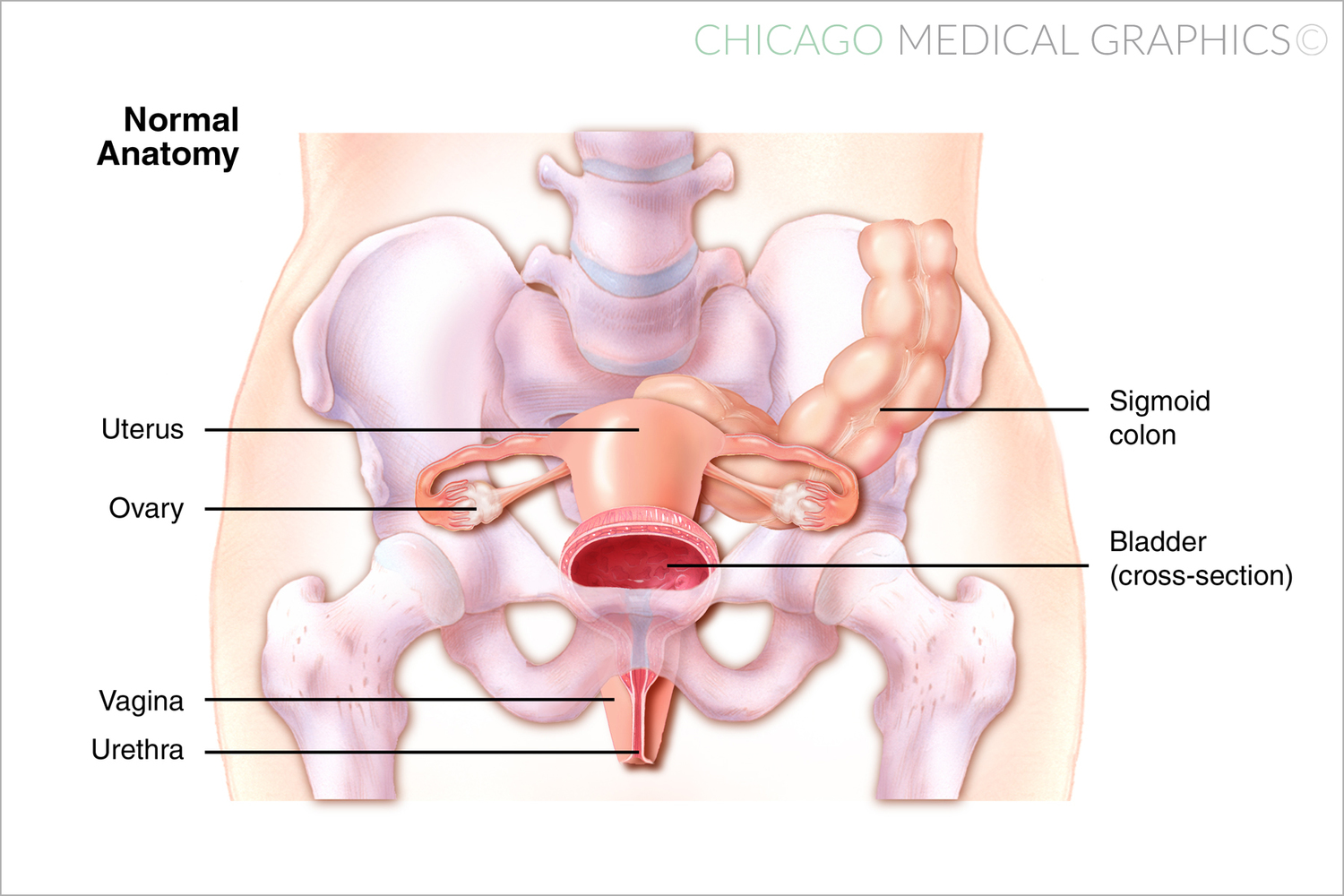 Pelvic Gunshot case — Chicago Medical Graphics