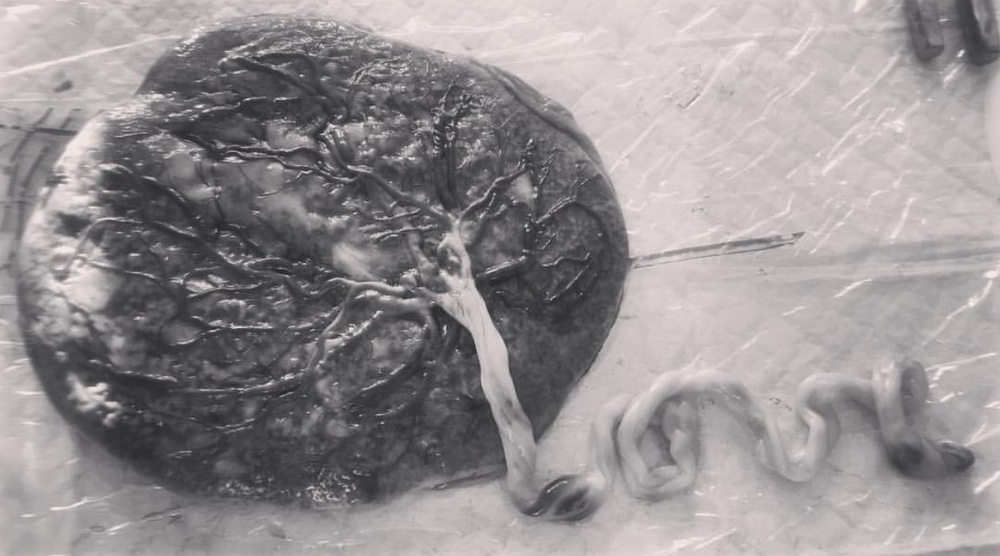 placenta love.jpg