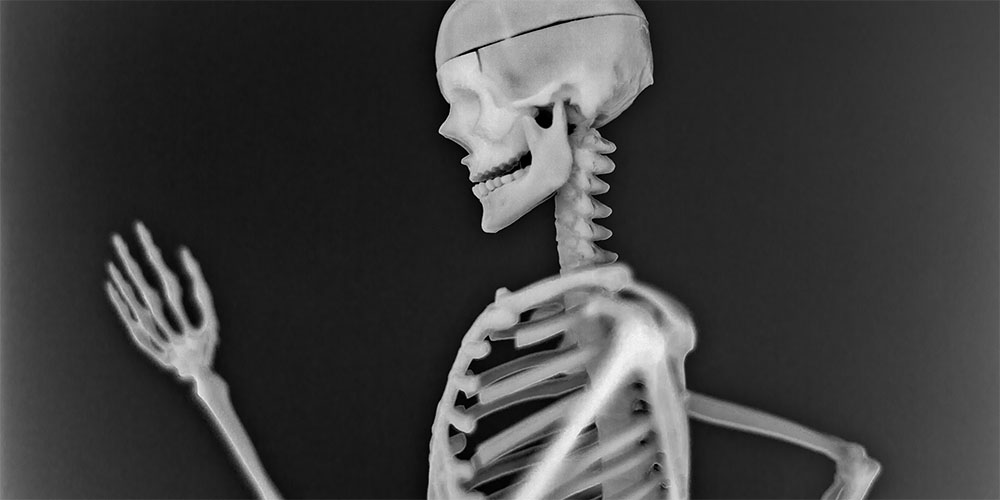 WebsetW SKELETON SML 01 tomsimmonds_0000s_0008_Skeleton Project 2 XXL_0012_The Skeleton Project 0032.jpg
