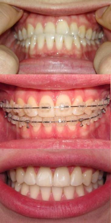 Ортодонтическое лечение с помощью брекетов: до и после