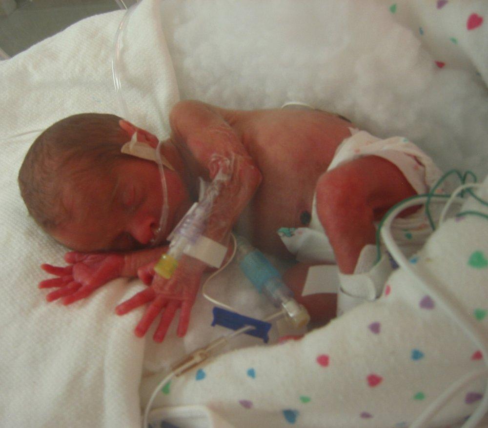 My Preemie