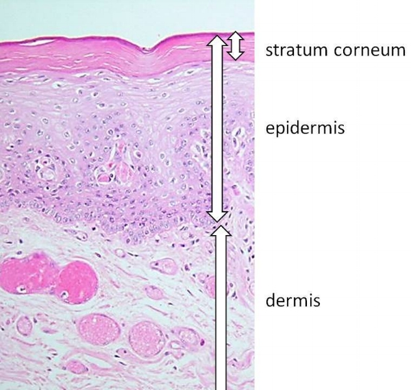 Microscopic cross section through skin. The dark dots are cell nuclei – note thatin the stratum corneum cells are dead and no nuclei are visible.
