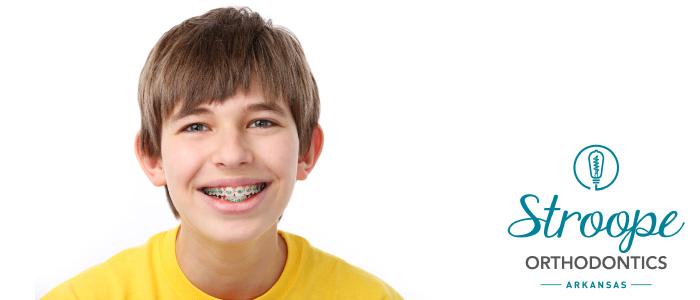 Braces smile Stroope Orthodontics