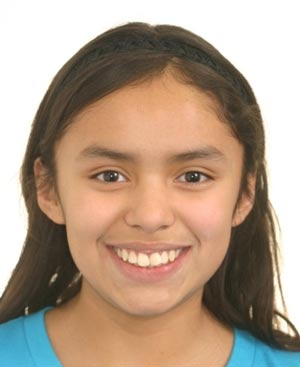 Girl with crooked front teeth