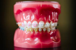 Front view tooth model with colorful braces